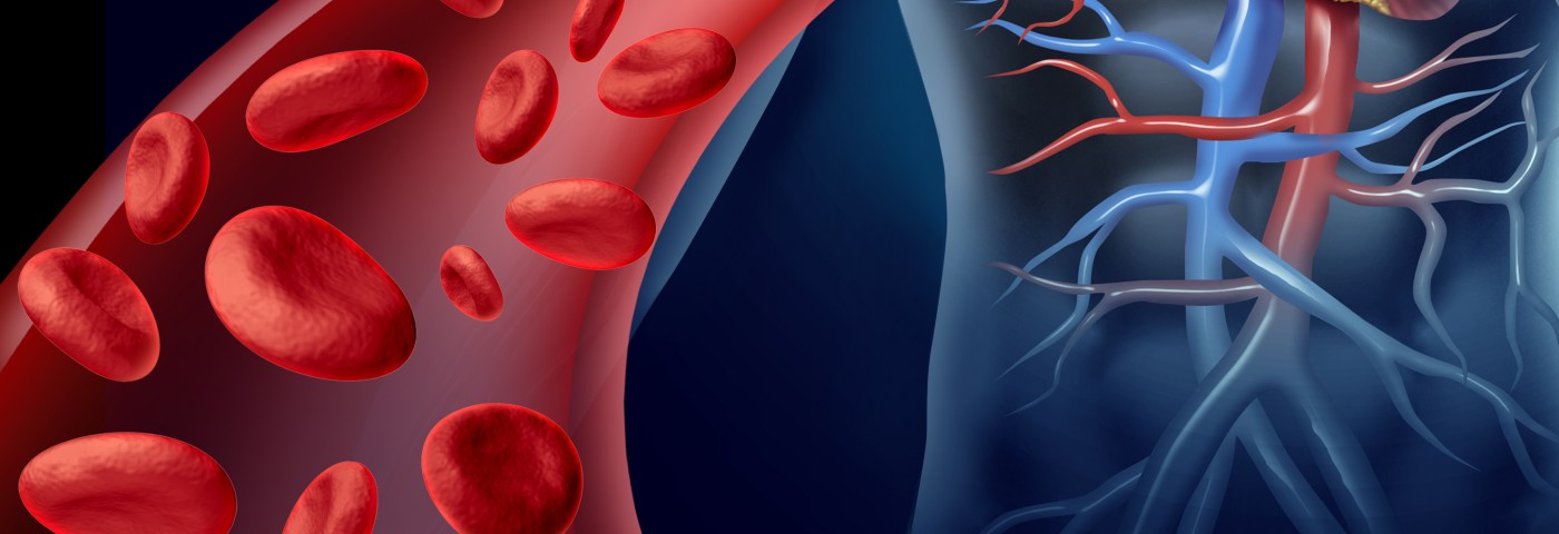 CAD Caused Red Blood Cells' Abnormal Distribution, Report Suggests